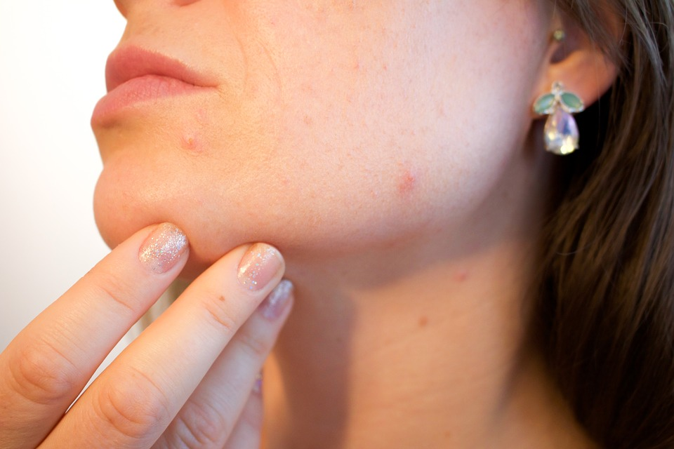 Acne viso rimedi naturali, come risolvere problemi di acne